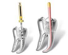 Vađenje živca uz pomoć endomotora iz krivih kanala zuba