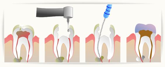 Zahnnerv ziehen