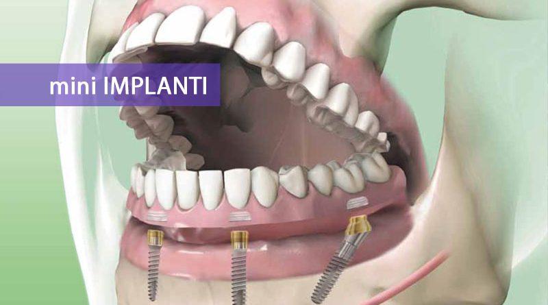 Mini implanti