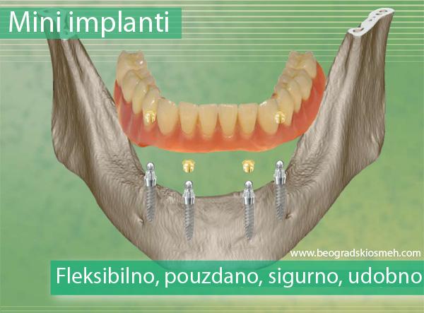 mini_implanti_SKY