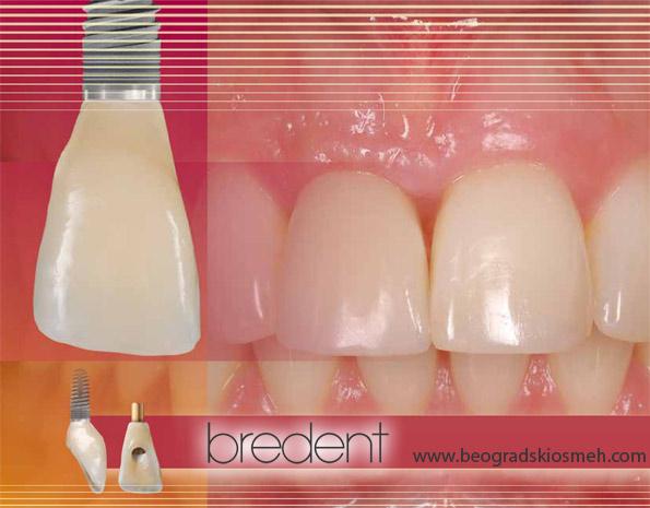 bredent-implanti-1