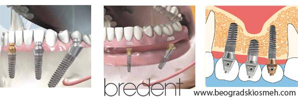 bredent-implanti-2