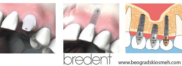 bredent-implanti-3