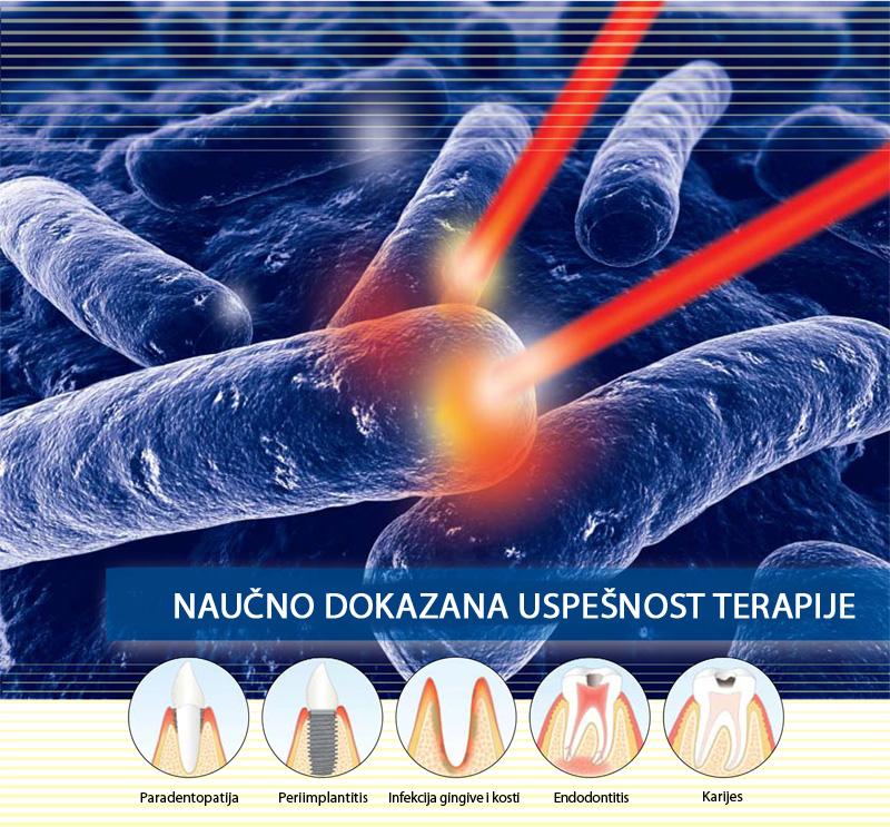 lečenje paradentopatije laserom