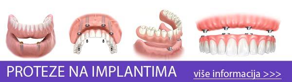 proteza-na-implantima