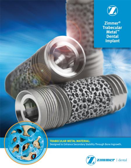 trabekular-implant-2