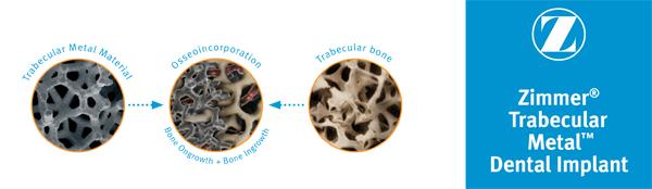 trabekular-implant