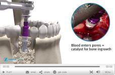 trabekular-metal-implant-video