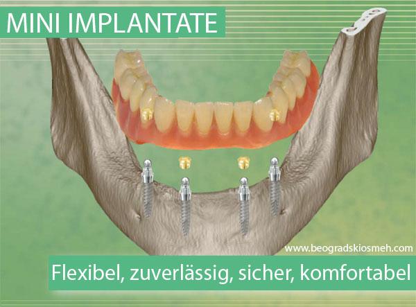 mini_implanti_SKY-de
