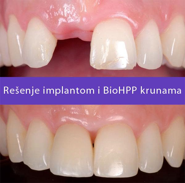 BioHPP kruna na implantima