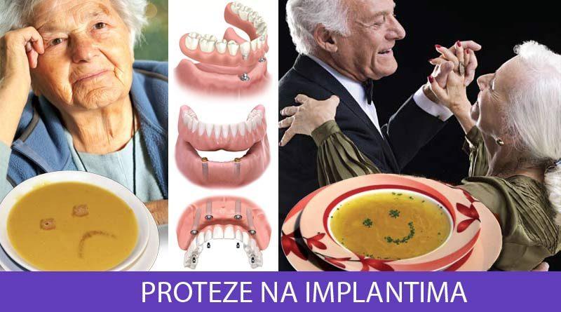 Totalne proteze na implantima