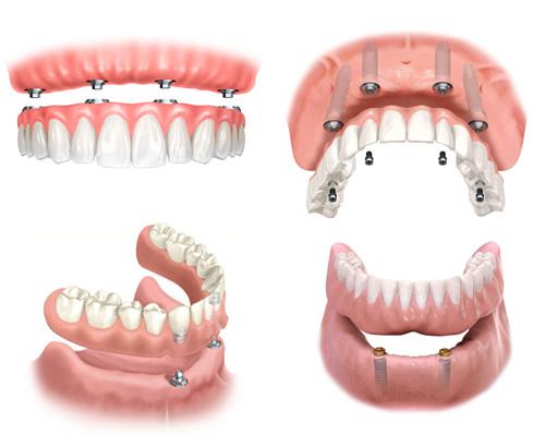 proteze-na-implantima