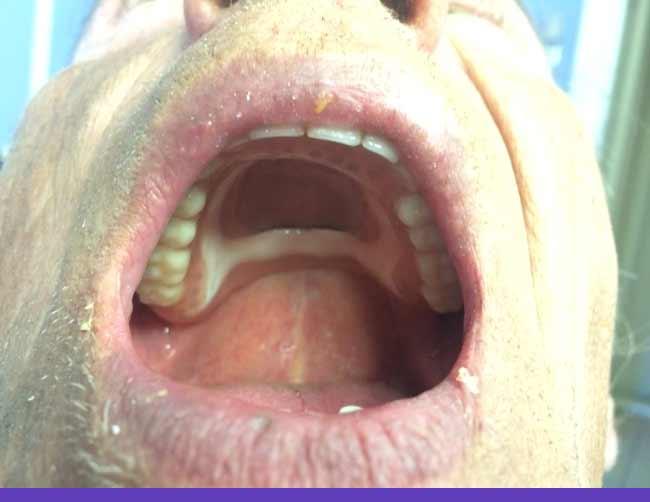 gornja-totalna-proteza-3
