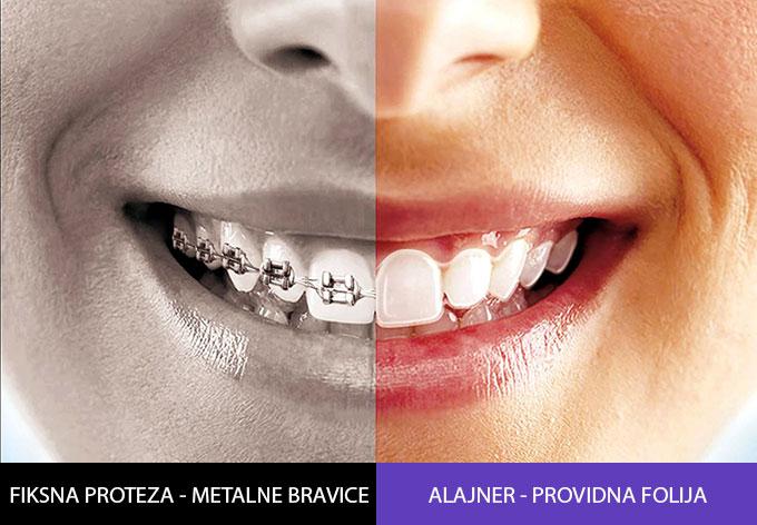 metalne-providne-proteze-poredjenje