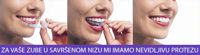 zubne-providne-folije