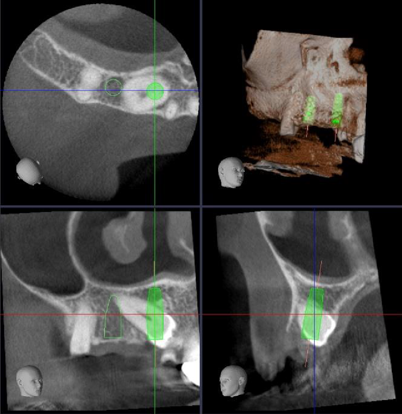 Implant planning on CBCT